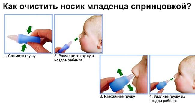Как очистить носик ребенка спринцовкой