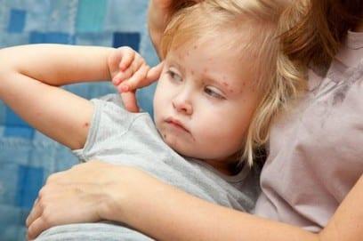 Коревая краснуха у детей – симптомы и лечение, прививка от краснухи детям