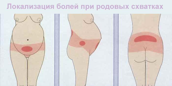 Локализация болей при родовых схватках
