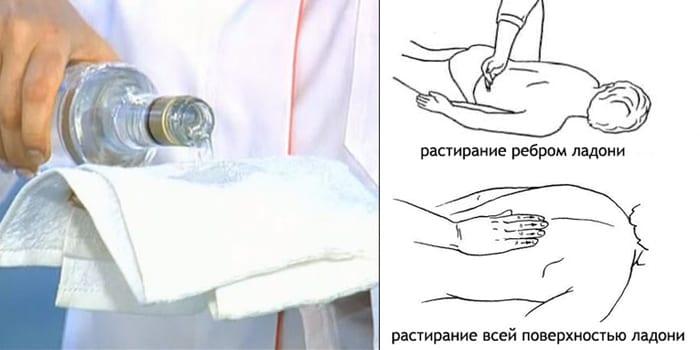 Техника выполнения обтираний водкой