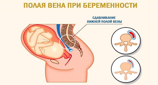 Сдавливание вены при беременности