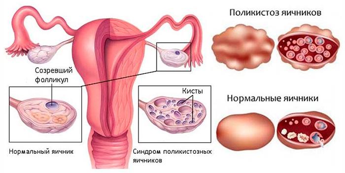 Норма и поликистоз яичников