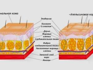 9 природных средств от целлюлита