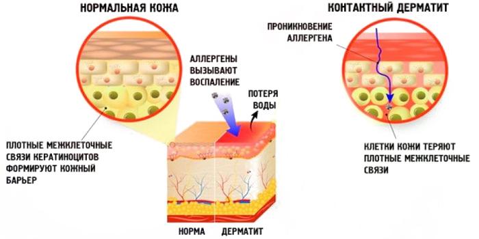 Нормальная кожа и контактный дерматит
