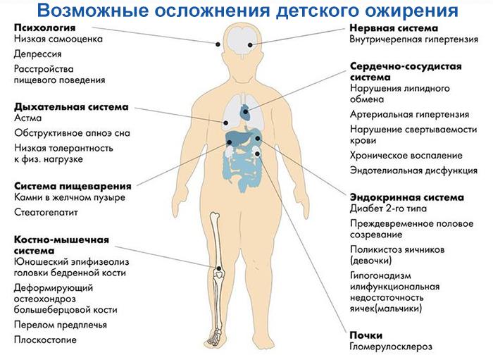 Осложнения детского ожирения