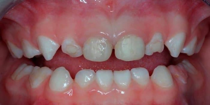 Разрушение передних зубов