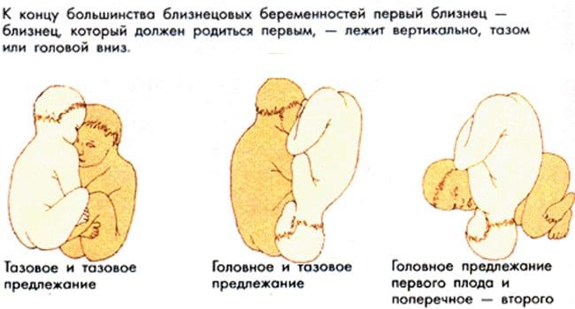 Варианты патологического предлежания плодов