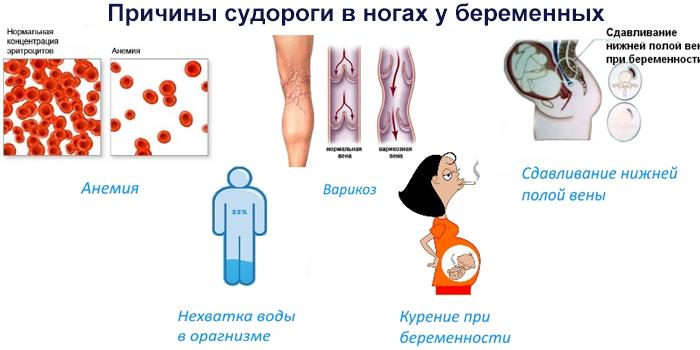 Причины судороги в ногах у беременной