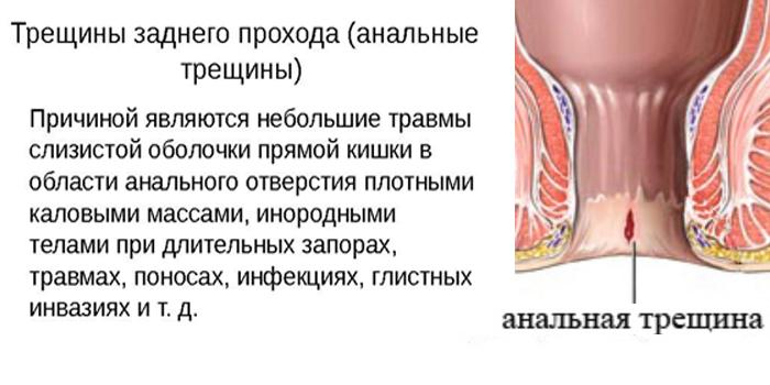 Причины появления трещин анального отверстия