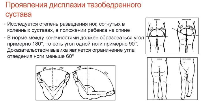 Проявления дисплазии тазобедренного сустава