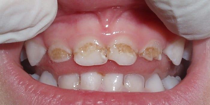 Пятна на молочных зубах