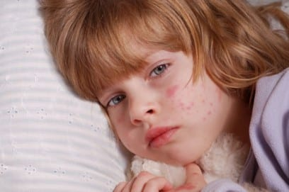 Розеола детская: симптомы и лечение заболевания
