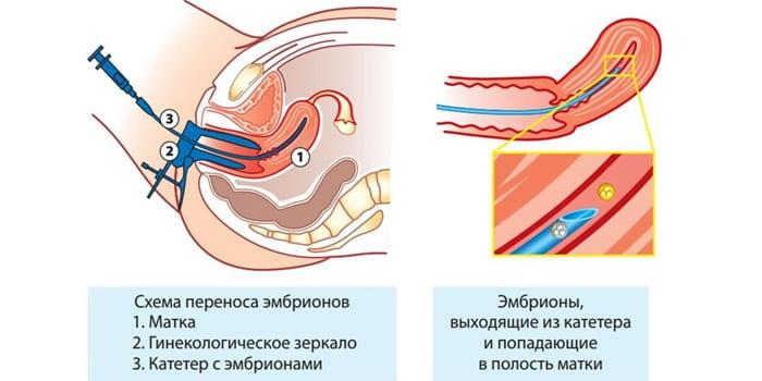 Схема переноса эмбриона