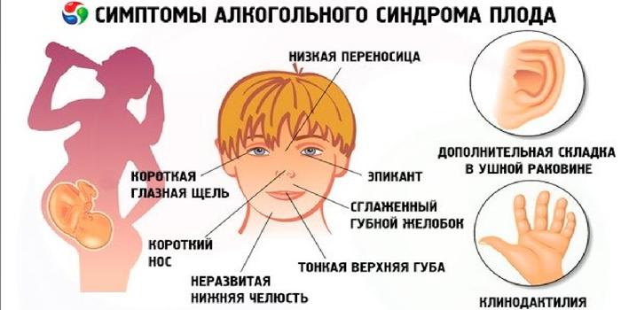 Симптомы алкогольного синдрома плода