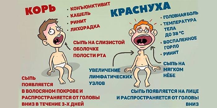 Симптоматика кори и краснухи