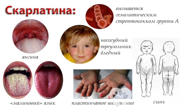 3 вопроса о скарлатине у ребенка