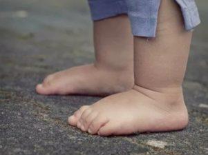 6 вопросов о плоскостопии у детей