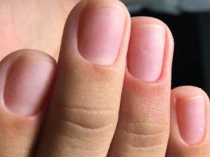 6 фактов, которые ногти говорят о вашем здоровье