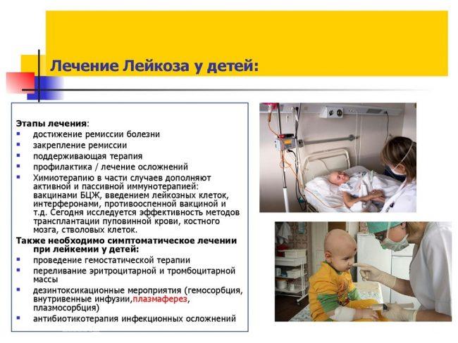 Лечение лейкоза у детей