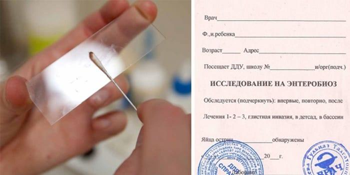 Соскоб на энтеробиоз