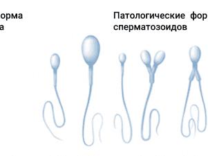 Слабая подвижность сперматозоидов