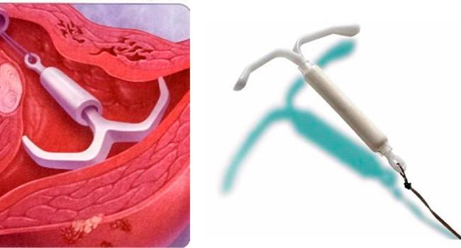 Спираль внутри матки