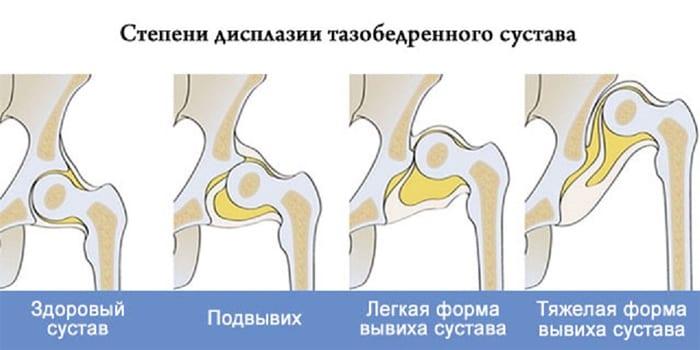 Степени дисплазии тазобедренного сустава
