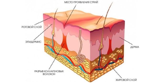 Строение кожи и стрия