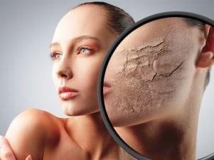 5 советов дерматолога по уходу за сухой кожей