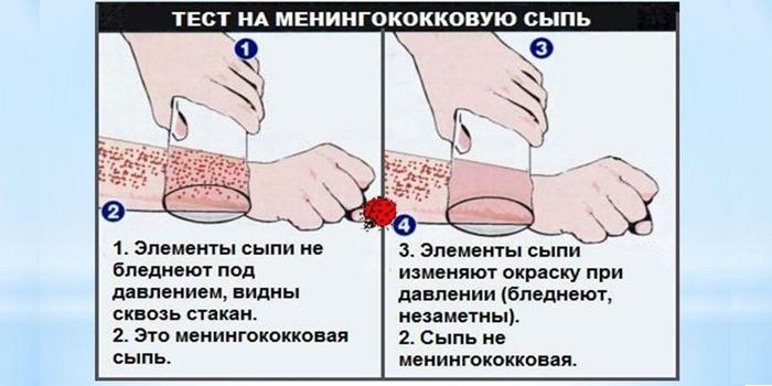Тест на менингококковую сыпь