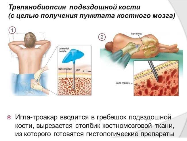 Пункция подвздошной кости