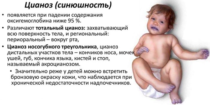 Виды цианоза