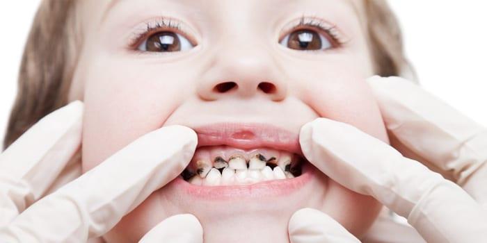 У мальчика больные зубки