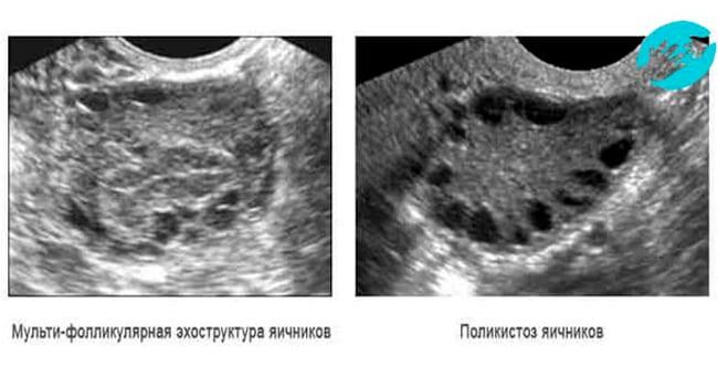Мультифолликулярные и поликистозные яичники на УЗИ