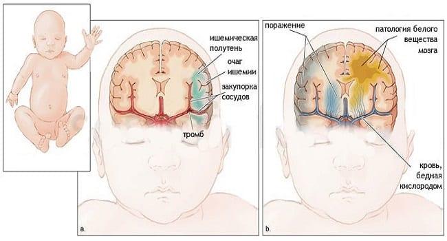 Гипоксическая энцефалопатия
