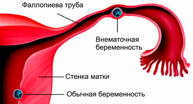 Обычная и внематочная беременности