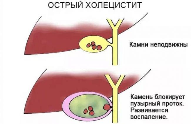 Острый холецистит на схеме