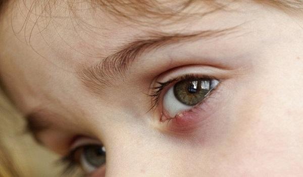 Что делать, если у ребенка часто выскакивают ячмени