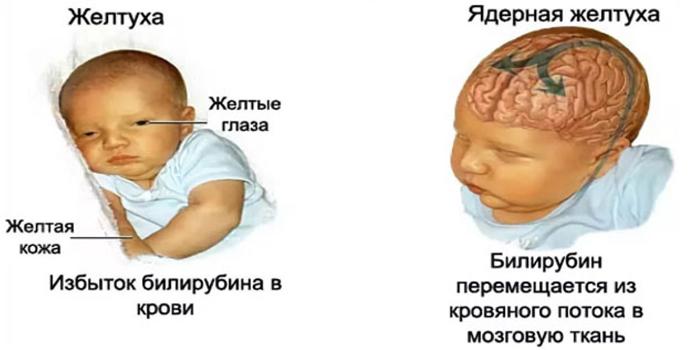 Ядерная желтуха у новорожденного